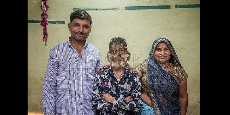 Voici Lalit Patidar, le jeune garçon atteint du « syndrome du loup-garou » (photos)