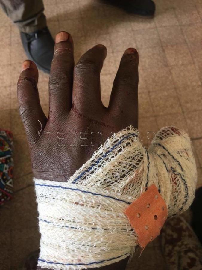 Photos - Point E : Le pouce tranché, un homme raconte  son agression à la machette