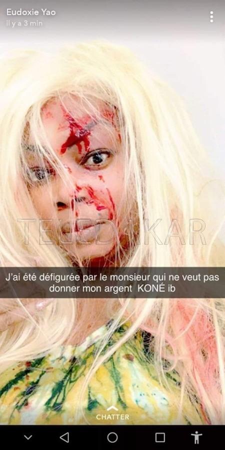 Photo- Eudoxie Yao kidnappée par un psychopathe à Paris  %Post Title